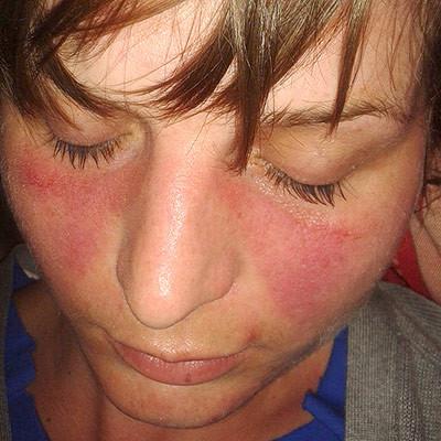 ▲紅斑性狼瘡。(圖/翻攝自維基百科)