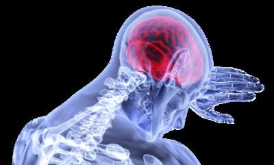 腦動脈瘤破裂 20%到院前死亡