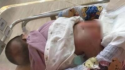 桃園月子中心驚傳女嬰受虐 母親提告要求查明