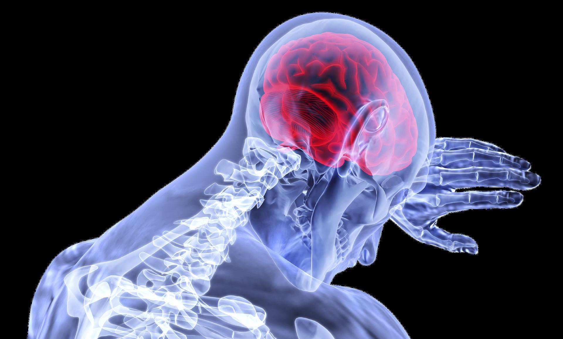 ▲人腦,頭痛,腦傷 。(圖/取自免費圖庫Pixabay)