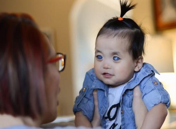 影/陸「銀眼」女童遭罵怪物 眼睛萎縮劇痛…美國養父母決定「摘除她雙眼」