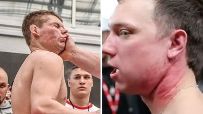 超紓壓!戰鬥民族舉辦「互搧耳光大賽」 被打成腫臉豬頭也不投降