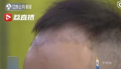 他貸款114萬植髮術後1個月掉一半