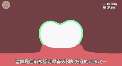 不再怕蛀牙! 兒童有這些「塗氟補助」你知道嗎?