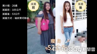 少女縮胃手術甩52公斤3年沒復胖