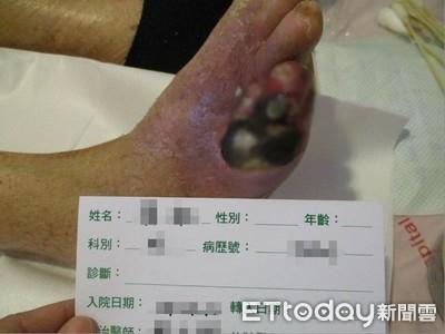 影/蚊子咬一口「慘變壞死筋膜炎」!她腳爛成墨綠色恐截肢