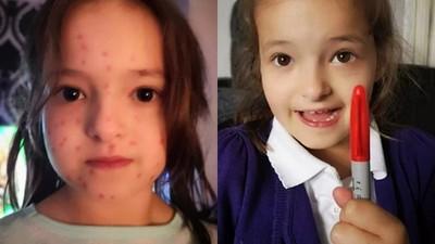 發現同學「長水痘不用上學」!調皮女童拿紅筆塗全身 被母識破還擦不掉