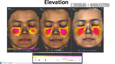 半臉比對實驗 玻尿酸術後成效比一比