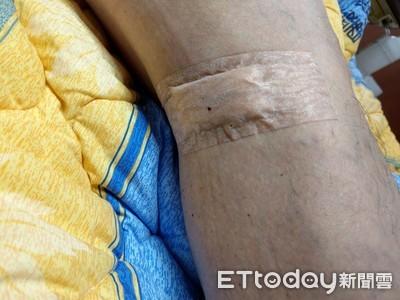 男右腿腫脹...醫開「原子筆」洞取血塊