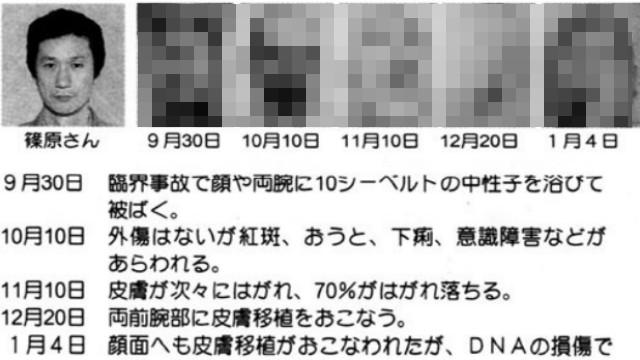 日本東海村核事故!工人作業程序出錯 身體急速潰爛強撐83天