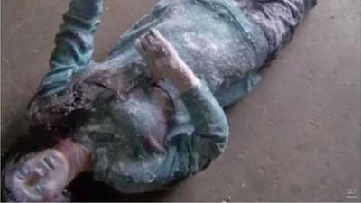 19歲少女零下冰封6小時 送醫解凍復活