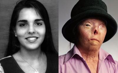 她用「酒駕臉」警世 40歲癌逝
