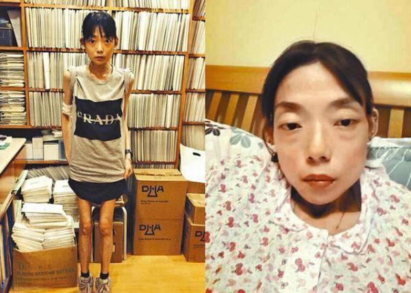 伍智恒在離婚後病情加劇,身高162公分的她更瘦到22公斤。(翻攝自微博)