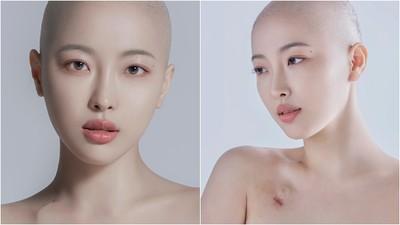 萬粉YouTuber剃光長髮 露鎖骨傷疤宣告抗癌 正向美拒絕被病痛拘限