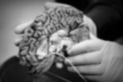 「人腦銀行」最缺吸毒犯和精障者! 切下每片組織...都藏著人生秘密