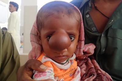 8月大「小丑鼻寶寶」 2眼間掛肉瘤長大