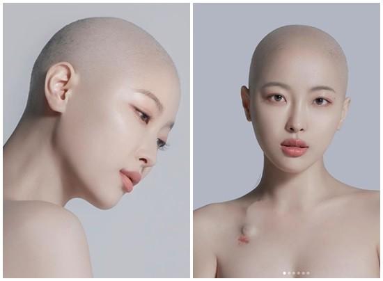 ▲韓網紅得淋巴癌。(圖/翻攝自YouTube/새벽、새벽IG)