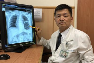 患者「嗯嗯」太用力撐破橫隔膜 胃竟跑進胸腔