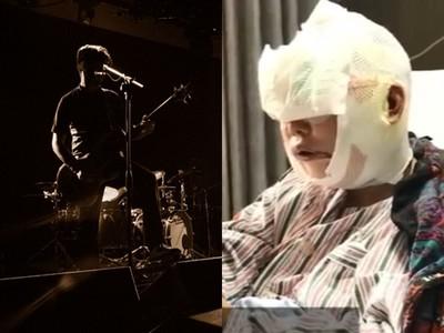 歌手兒失蹤16年!60歲母怕他認不出「全臉整型」