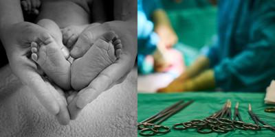 胎兒無心跳…引產屍體變形傳哭聲