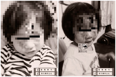 2歲女兒被繼父打成熊貓眼 媽竟帶她去求復合