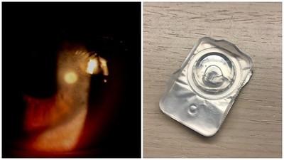週拋隱眼使用不當!少戴隱眼也會中獎「角膜潰瘍」 眼球疤痕消不掉