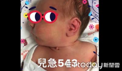 男嬰脖竄出「粉色肉球」...網驚:是嬰兒小頭? 醫笑解答!
