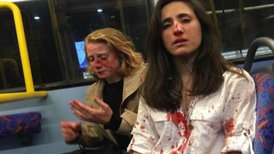 倫敦同性情侶被要求「表演接吻」 拒絕後遭4男毆打血濺巴士