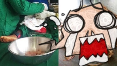 「便祕半年」挖出一盆「生猛蠕動炒麵」!4歲童腹脹像懷孕,醫生開刀嚇壞