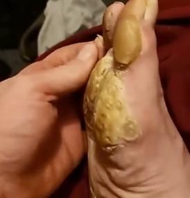 ▲▼腳皮。(圖/翻攝自Facebook/Medical  Sharing)