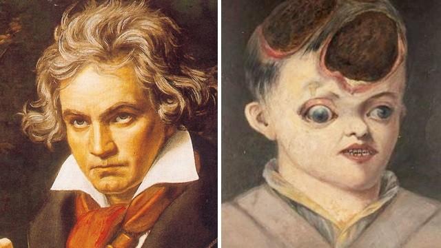 貝多芬「頭皮潰爛」噴香水蓋臭味!歐洲名人華麗假髮的真相:染上梅毒