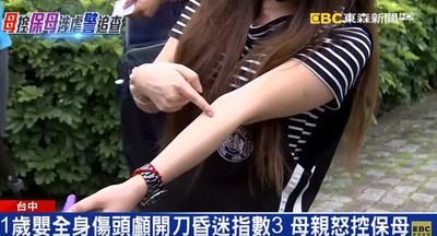 1歲女嬰手骨裂、終生癱!醫:人為扭斷