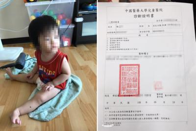 1歲女童受虐腦出血!應曉薇提5大疑點