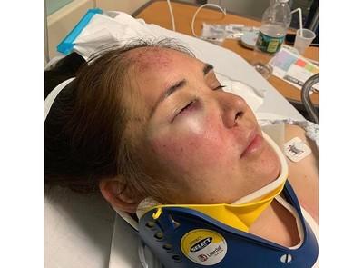 兒子遭霸凌 她投訴竟被打到腦震盪