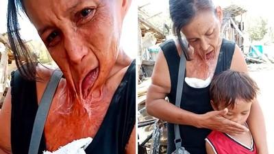 雙手捧「融化的下巴」逃出火場!窮母買消炎藥隨便塗,爛肉黏在胸口上