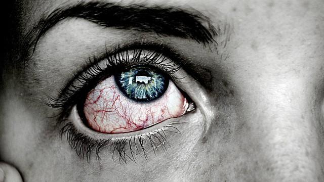 ▲▼眼睛,發炎,紅腫,血輪眼。(圖/取自免費圖庫pixabay)