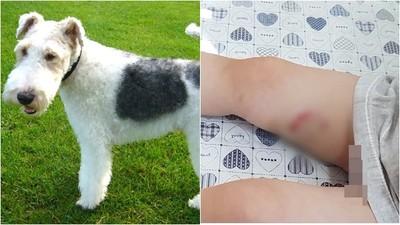 女童遭咬傷!年初才因不繫狗繩咬傷陰莖 飼主:我狗很乖不咬人