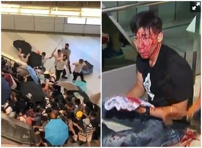 香港變煉獄!主播狂奔救人…慘被元朗白衣人「爆頭往死裡打」