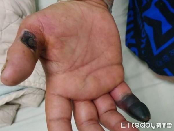 ▲▼柏格氏症發病初期外觀像是手腳凍傷,主要在手腳指末端有瘀青、發黑的現象,患者通常都不以為意,等到出現了腫脹、發紺才就醫。(圖/記者王兆麟翻攝,下同)