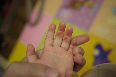 5歲童被「鉗子夾肉」關籠、淋滾水虐死