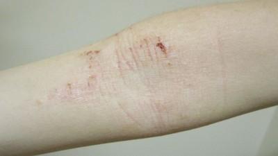 異位性皮膚炎跟「洗衣精」有關! 用超濃縮、洗衣球小心抓到紅腫