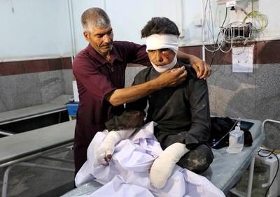阿富汗巴士被炸 至少17傷、34死