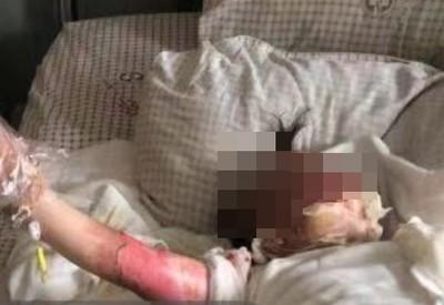 掉進油鍋!爸媽幫脫衣...2歲女童整片皮被撕下