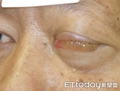 鼻塞、流鼻血...竟是鼻腔癌末期!2周內「腫瘤擠爆左眼」