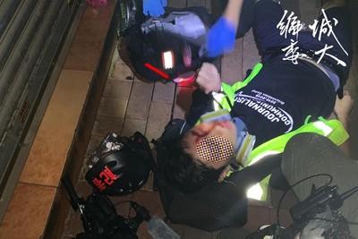 港警「橡膠子彈」射中記者臉部
