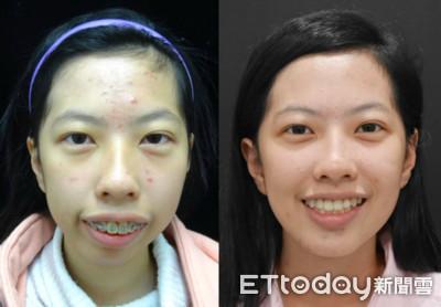 跌倒傷到下顎骨變「臉歪暴牙」 20歲女靠「顳顎治療」變正妹