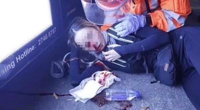 少女被射爆眼球「恐永久失明」 妹:附近骨頭全碎