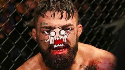 鼻梁被踹成「C」形狀!格鬥選手忍痛呼吸困難 堅持鈴響才下場