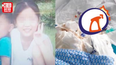 14歲萌妹96%燒傷「呈皮革狀」命危