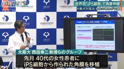 全球首例!日本「iPS眼角膜移植」成功